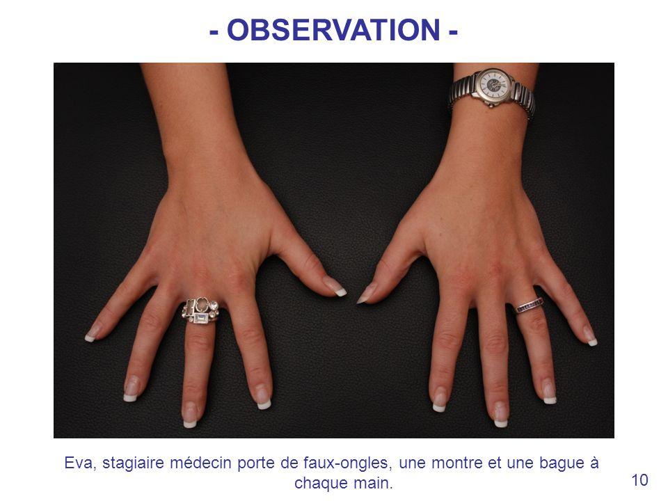 - OBSERVATION - Eva, stagiaire médecin porte de faux-ongles, une montre et une bague à chaque main.