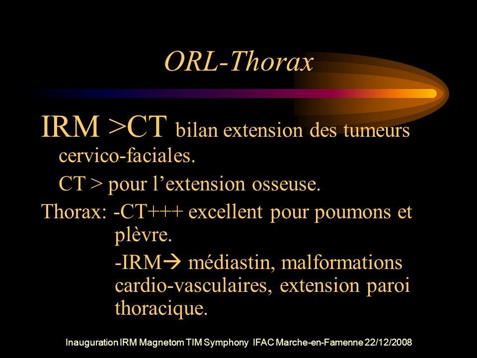 IRM >CT bilan extension des tumeurs cervico-faciales.