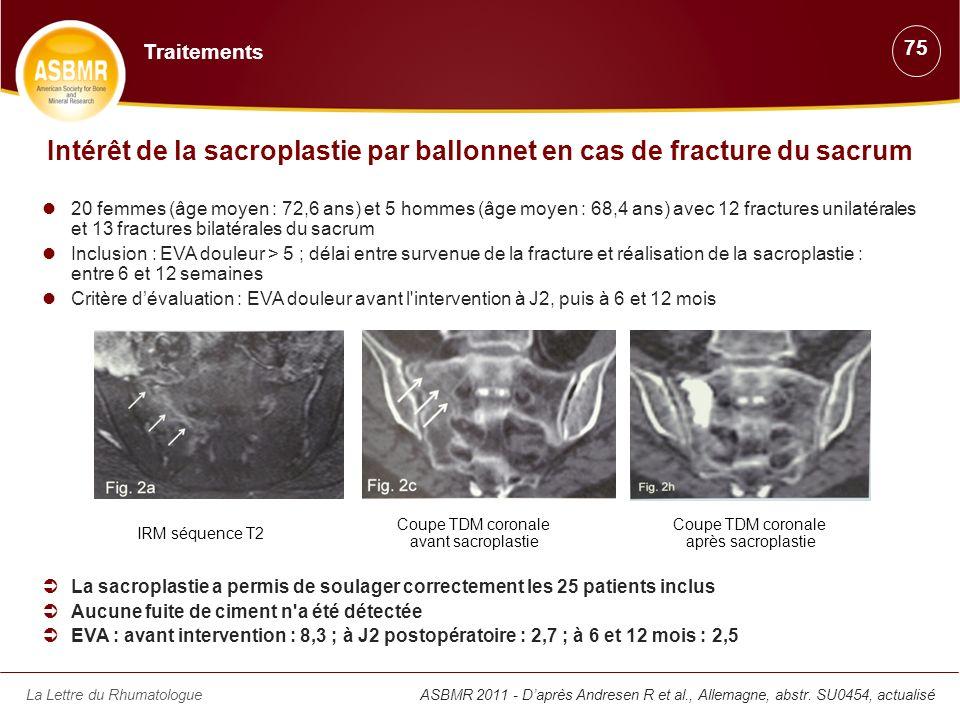 Intérêt de la sacroplastie par ballonnet en cas de fracture du sacrum