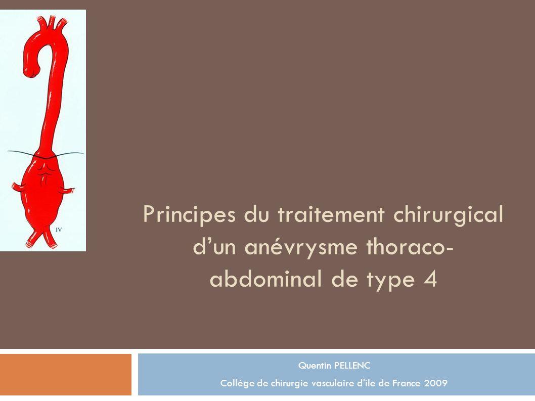 Collège de chirurgie vasculaire d ile de France 2009