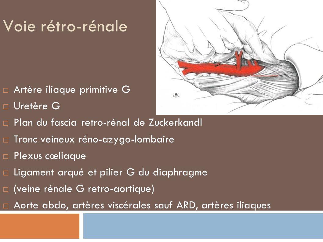 Voie rétro-rénale Artère iliaque primitive G Uretère G