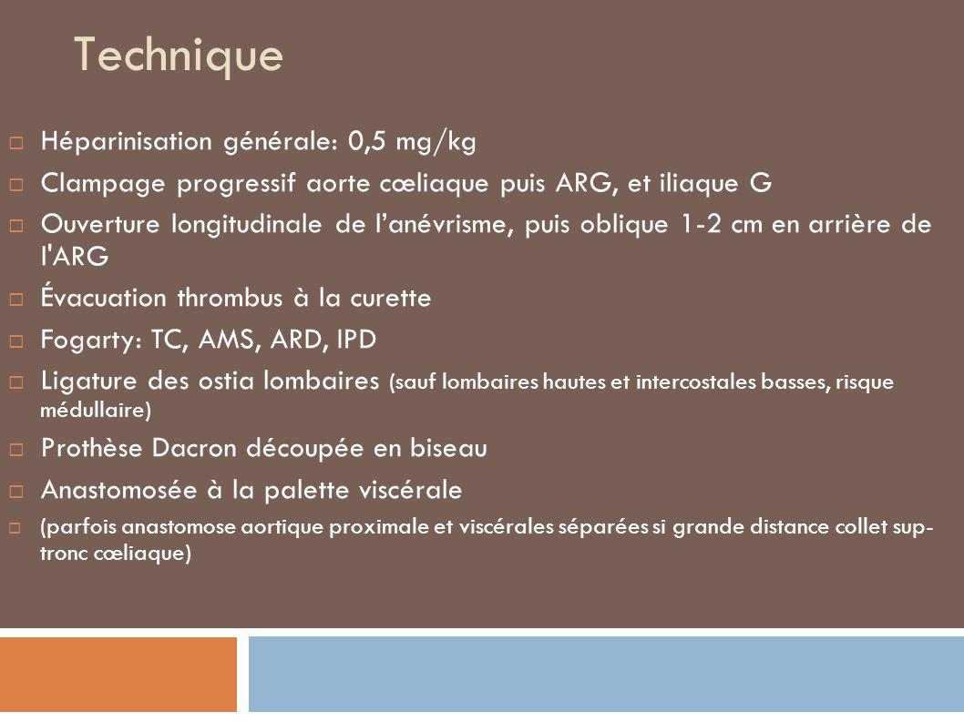 Technique Héparinisation générale: 0,5 mg/kg