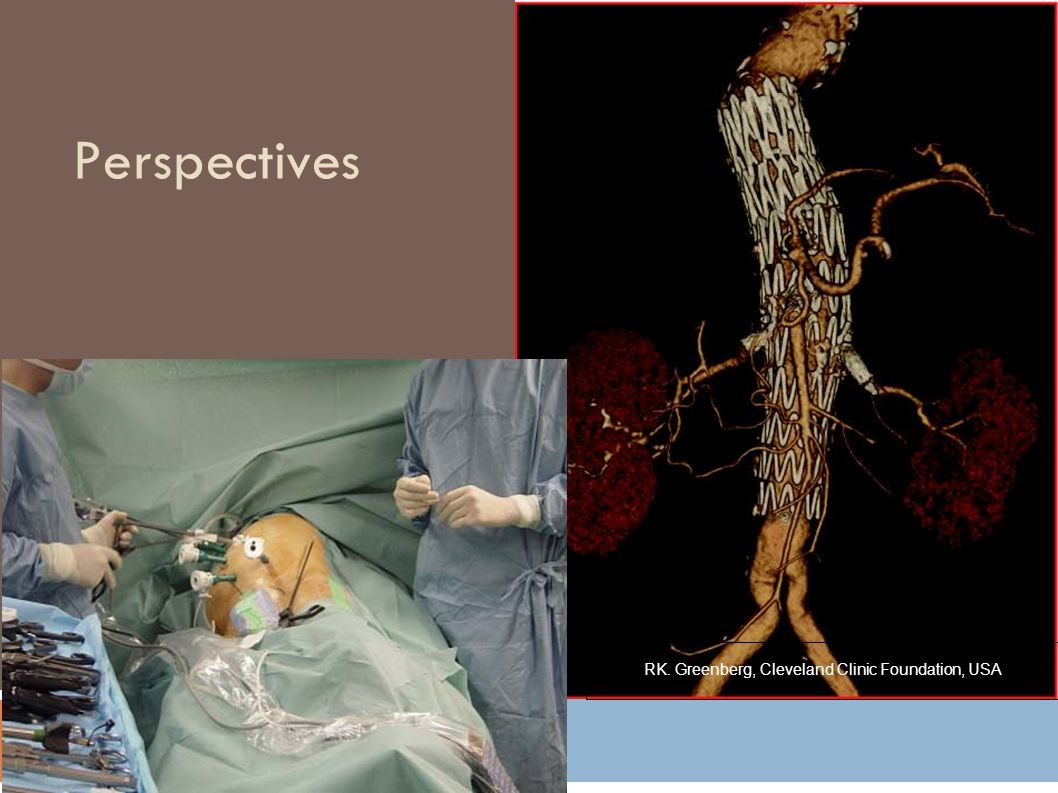 Perspectives RK. Greenberg, Cleveland Clinic Foundation, USA