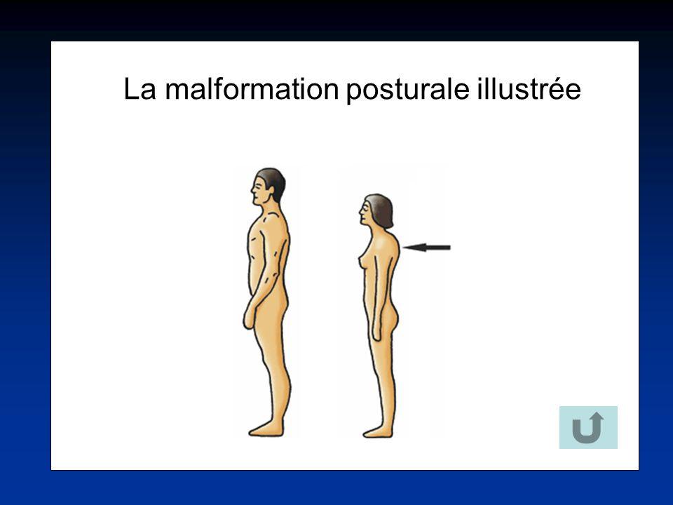 La malformation posturale illustrée