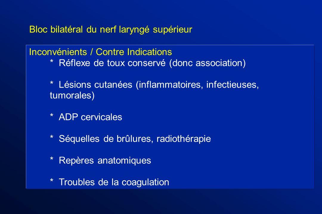 Bloc bilatéral du nerf laryngé supérieur
