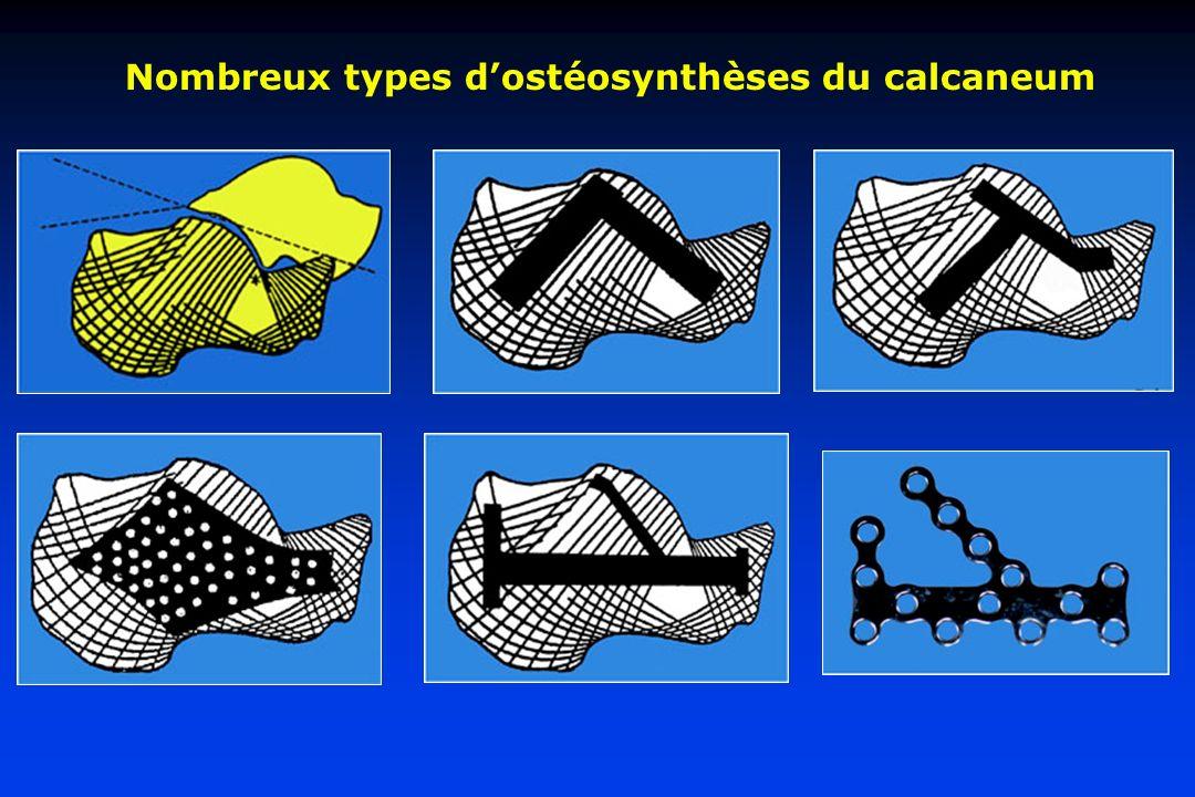 Nombreux types d'ostéosynthèses du calcaneum