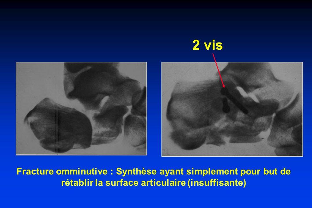 2 vis Fracture omminutive : Synthèse ayant simplement pour but de rétablir la surface articulaire (insuffisante)