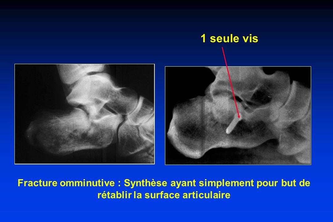 1 seule vis Fracture omminutive : Synthèse ayant simplement pour but de rétablir la surface articulaire.