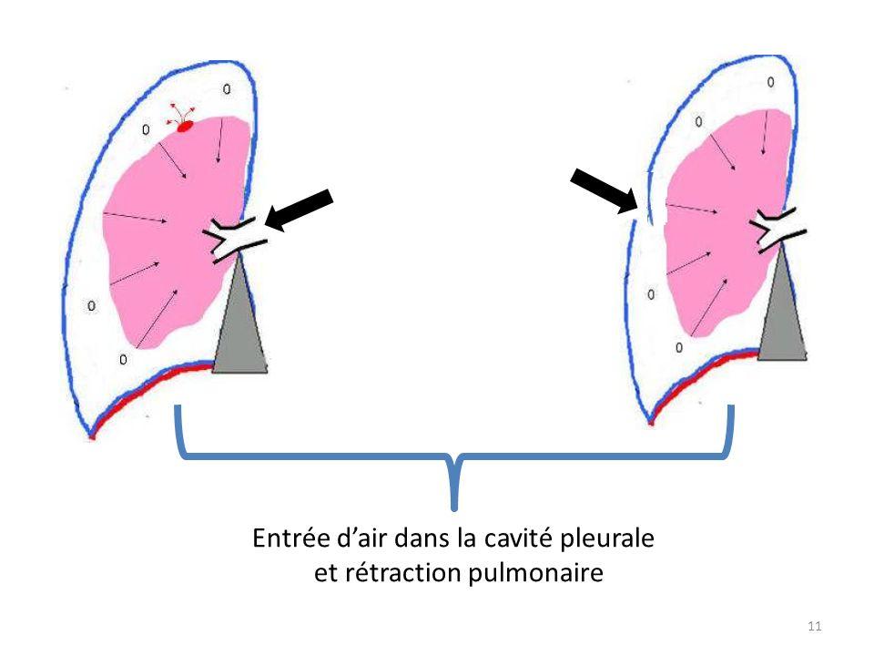 et rétraction pulmonaire