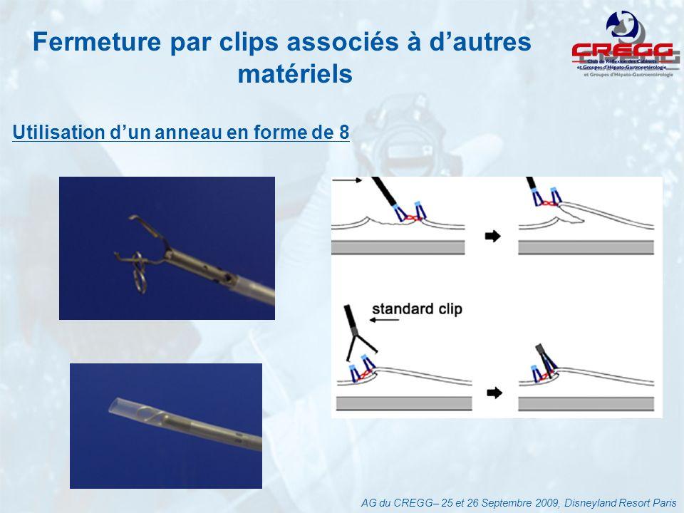 Fermeture par clips associés à d'autres matériels