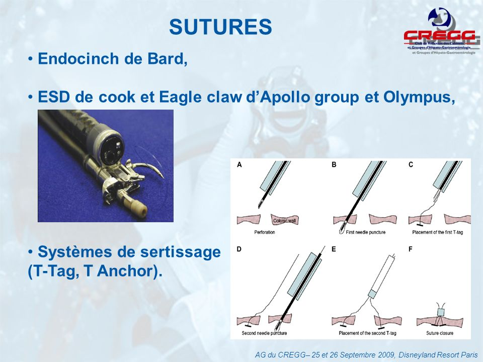 SUTURES Endocinch de Bard,
