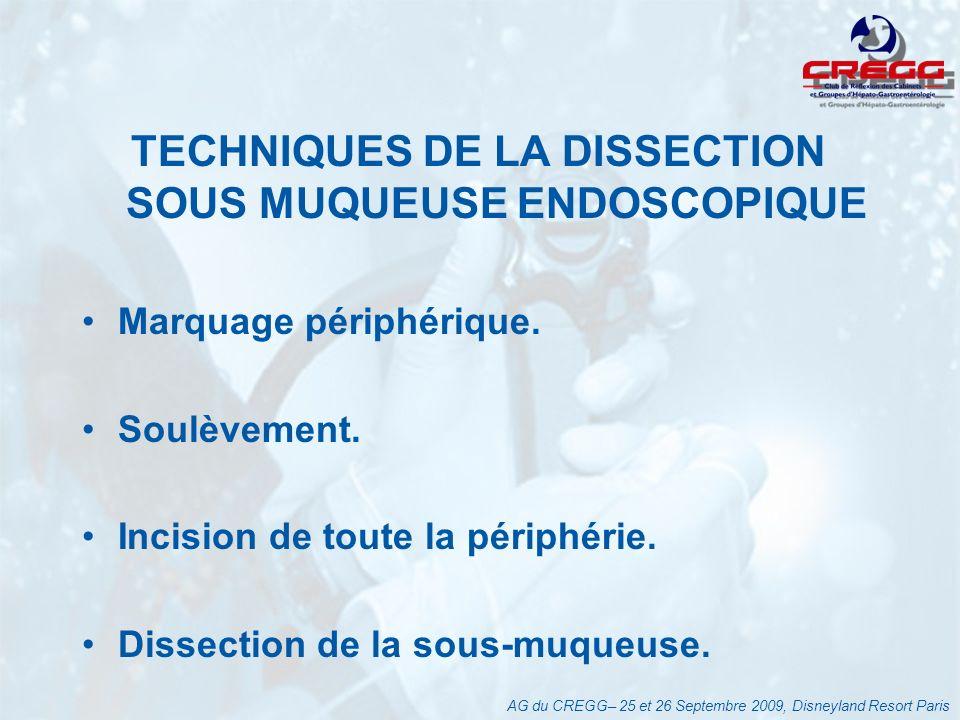 TECHNIQUES DE LA DISSECTION SOUS MUQUEUSE ENDOSCOPIQUE