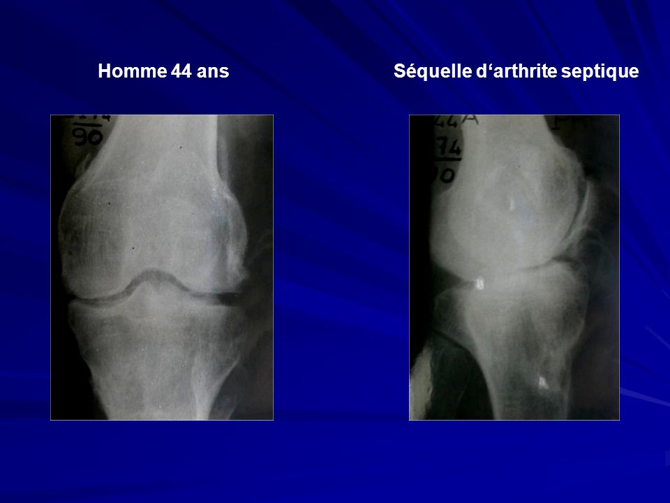 Séquelle d'arthrite septique