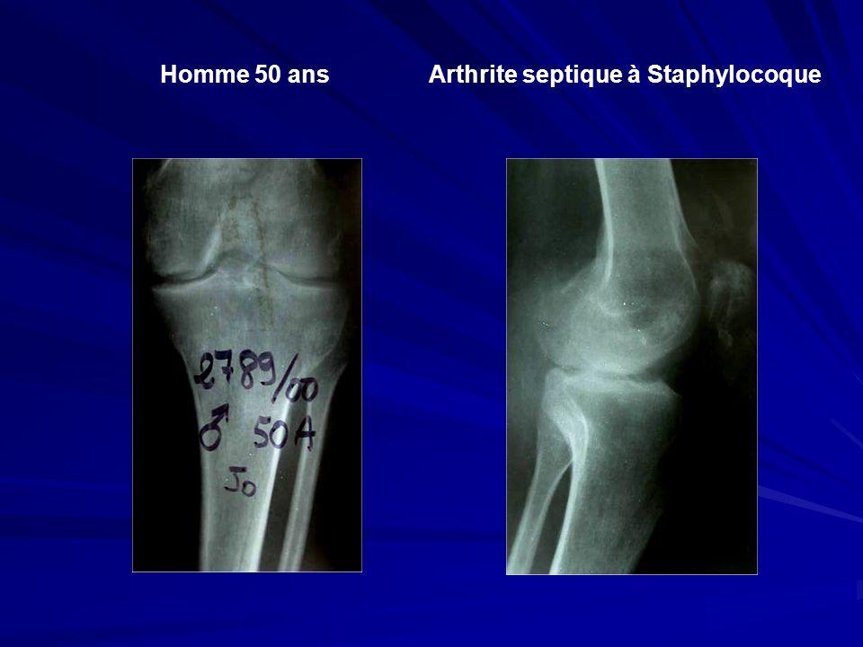 Arthrite septique à Staphylocoque