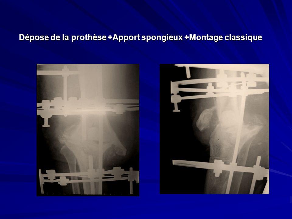 Dépose de la prothèse +Apport spongieux +Montage classique