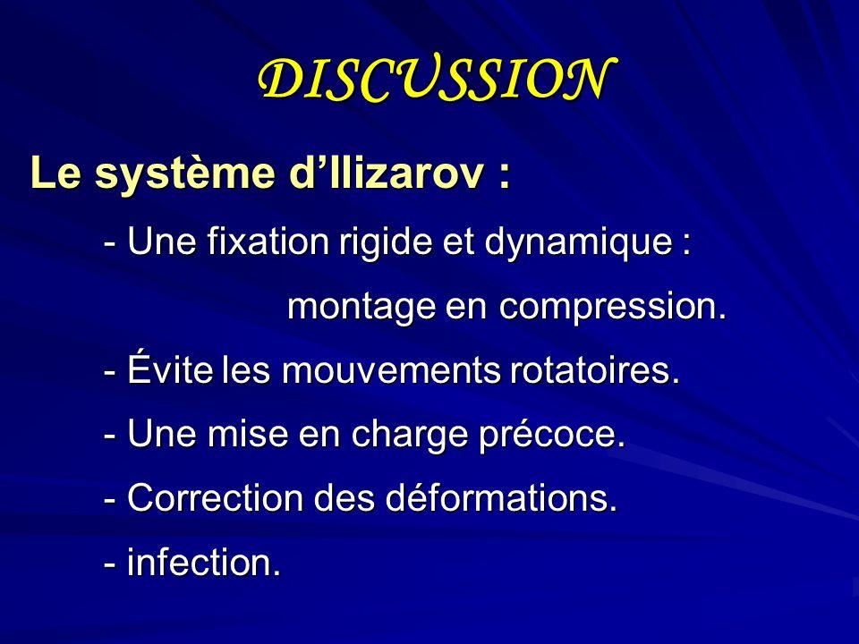 DISCUSSION Le système d'Ilizarov :