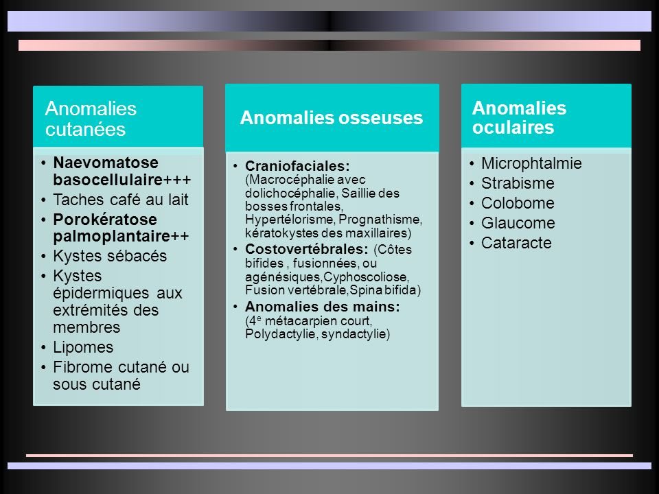 Anomalies cutanées Anomalies osseuses Anomalies oculaires
