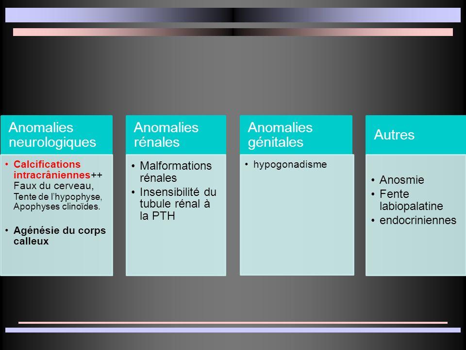 Anomalies neurologiques Anomalies rénales Anomalies génitales Autres