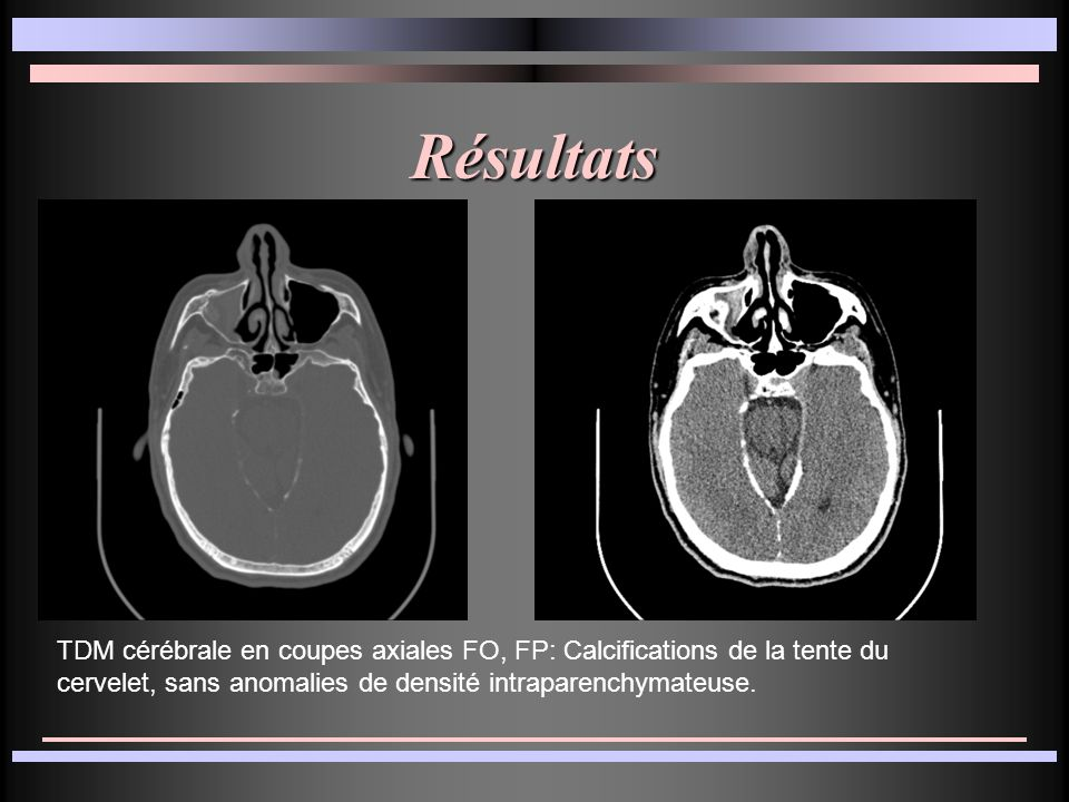 Résultats TDM cérébrale en coupes axiales FO, FP: Calcifications de la tente du cervelet, sans anomalies de densité intraparenchymateuse.