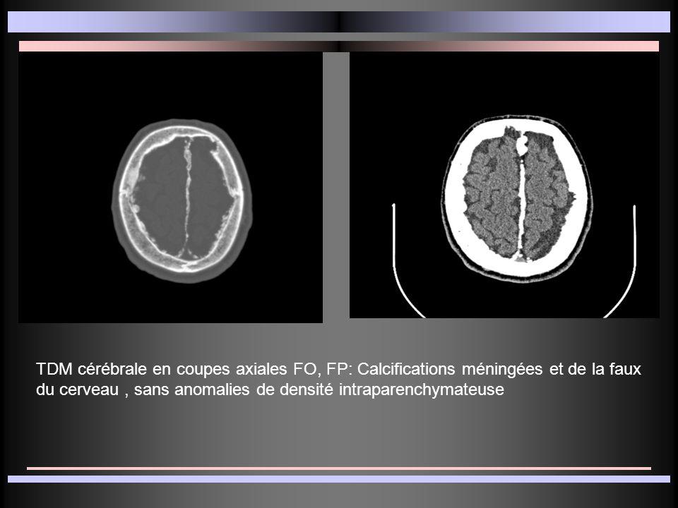 TDM cérébrale en coupes axiales FO, FP: Calcifications méningées et de la faux du cerveau , sans anomalies de densité intraparenchymateuse