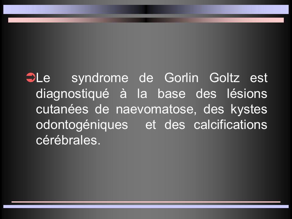 Le syndrome de Gorlin Goltz est diagnostiqué à la base des lésions cutanées de naevomatose, des kystes odontogéniques et des calcifications cérébrales.