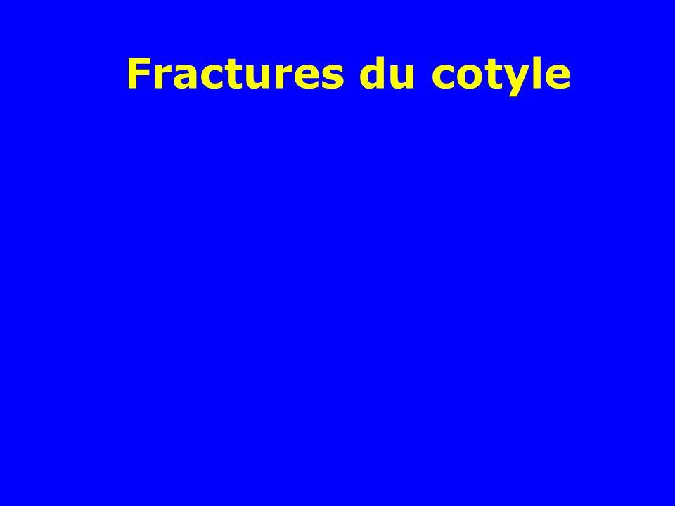 Fractures du cotyle