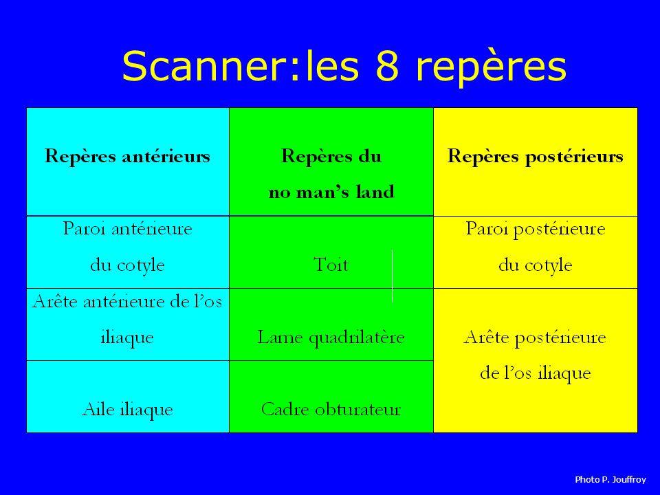 Scanner:les 8 repères Photo P. Jouffroy