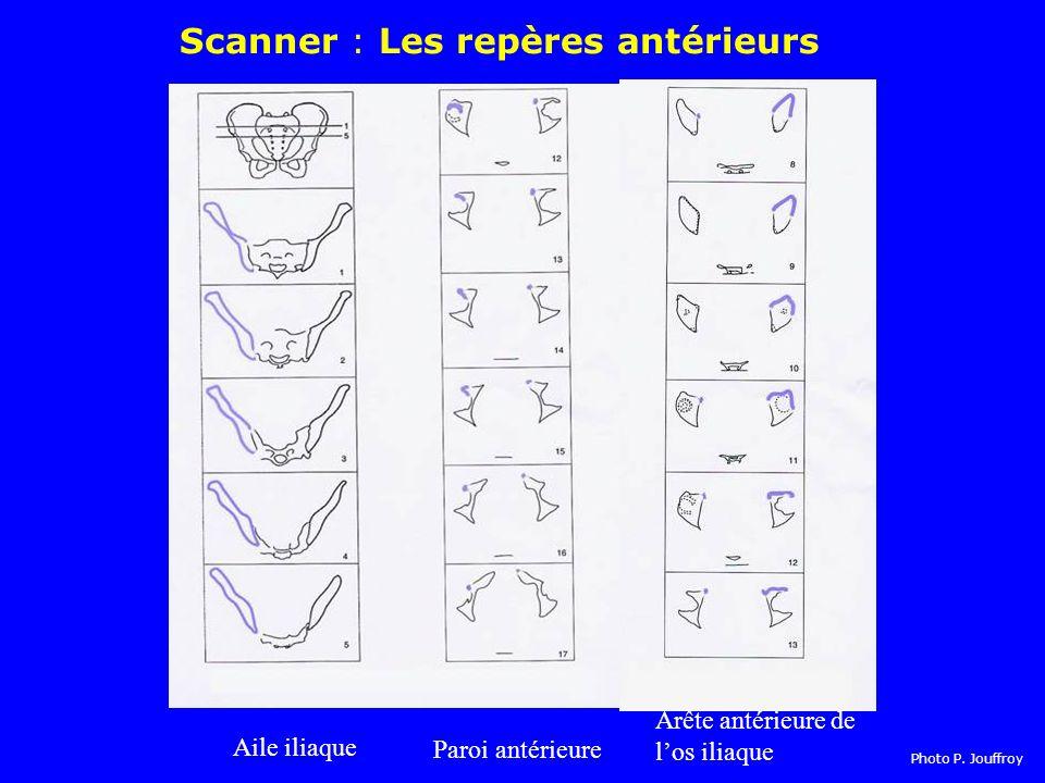 Scanner : Les repères antérieurs