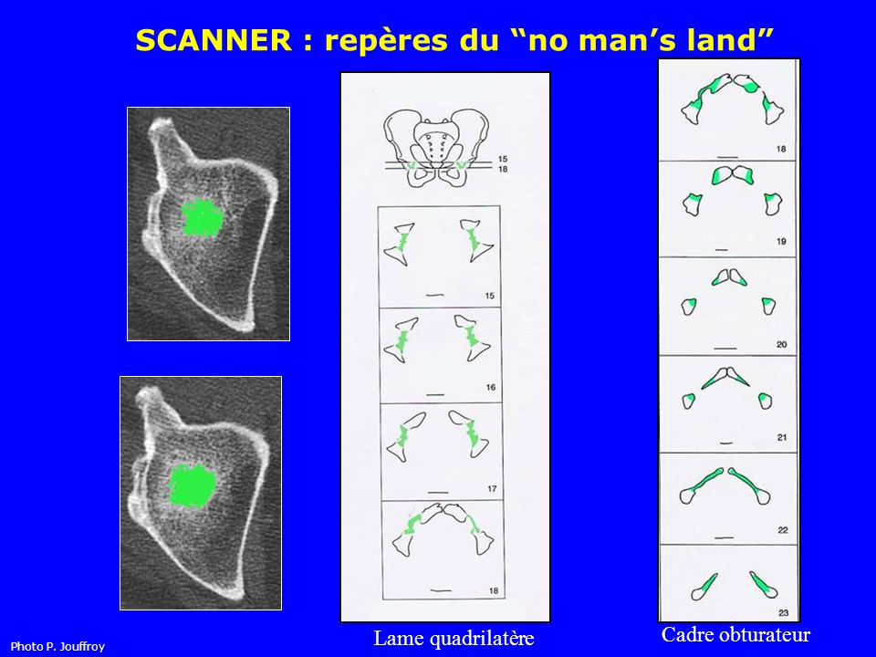 SCANNER : repères du no man's land