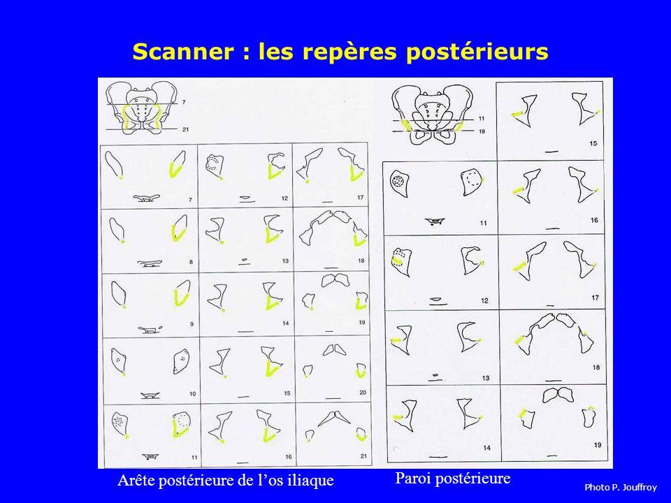 Scanner : les repères postérieurs
