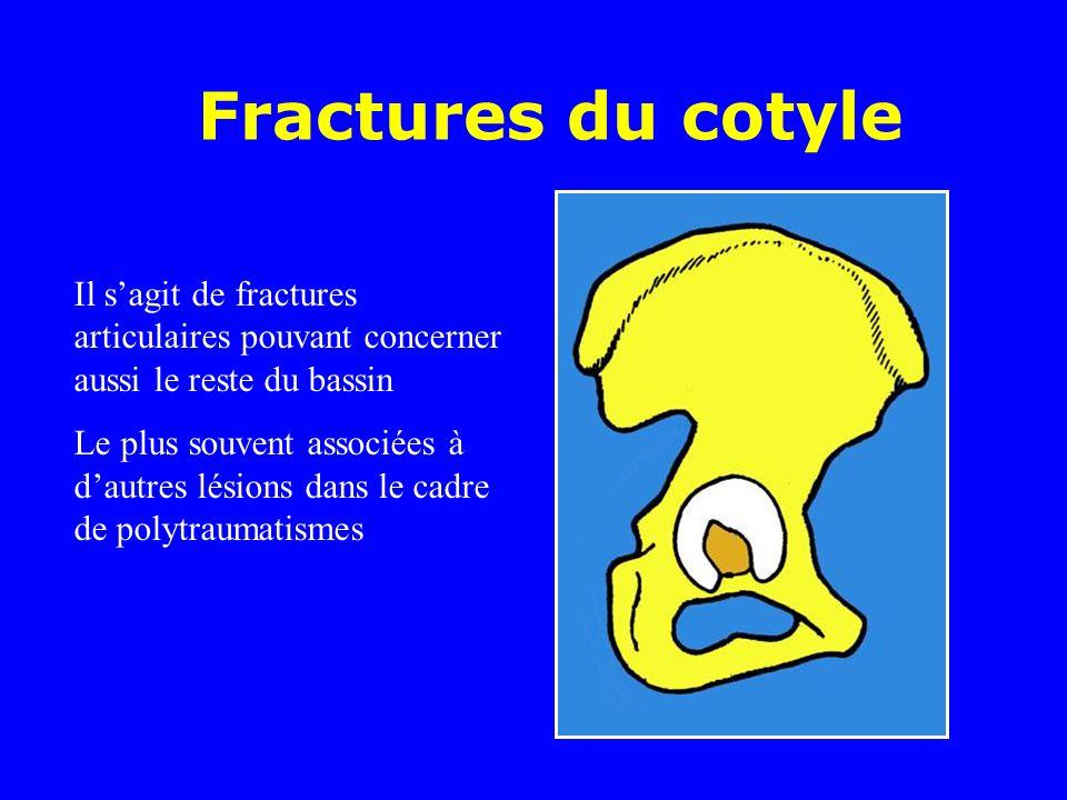 Fractures du cotyle Il s'agit de fractures articulaires pouvant concerner aussi le reste du bassin.