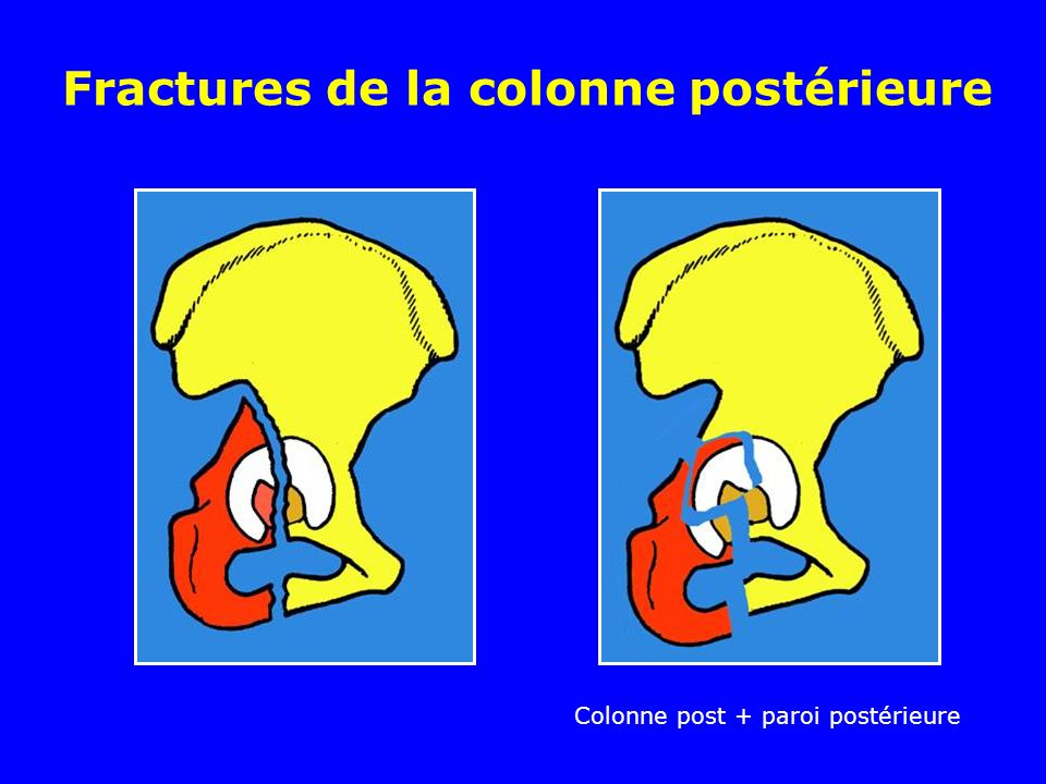 Fractures de la colonne postérieure