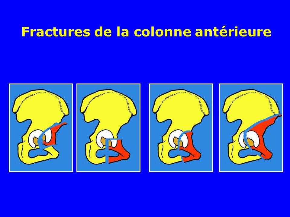 Fractures de la colonne antérieure