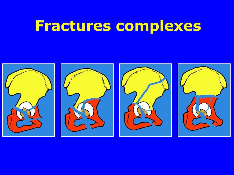 Fractures complexes