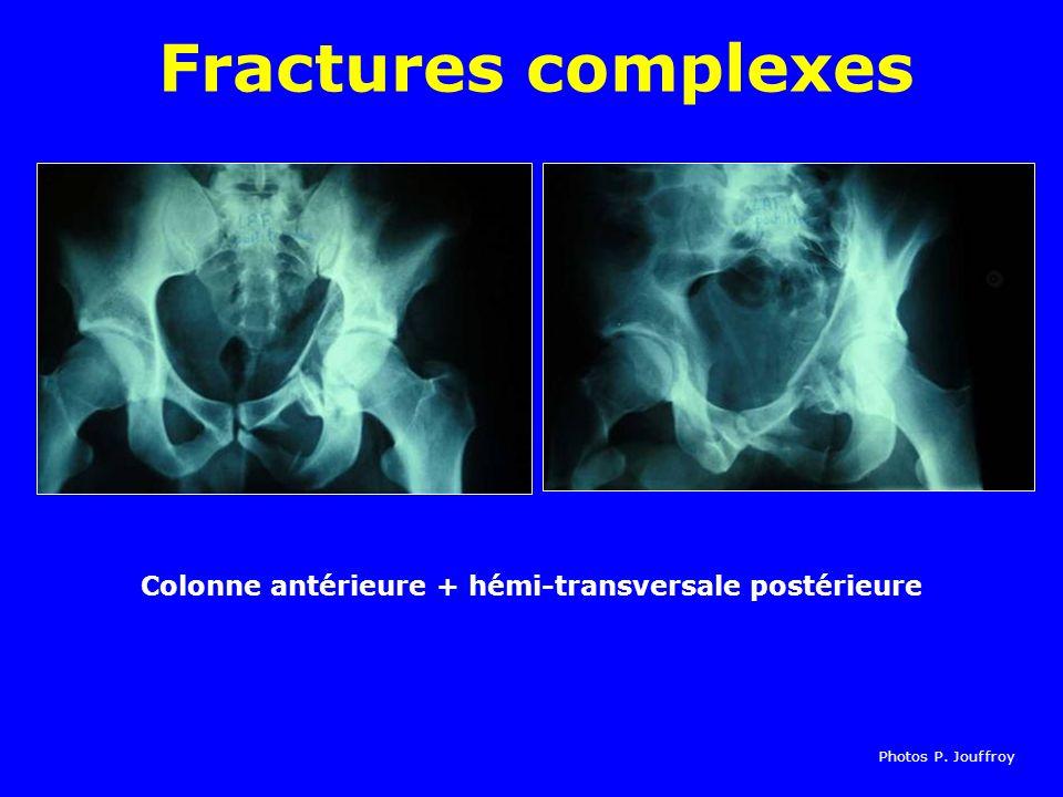 Colonne antérieure + hémi-transversale postérieure