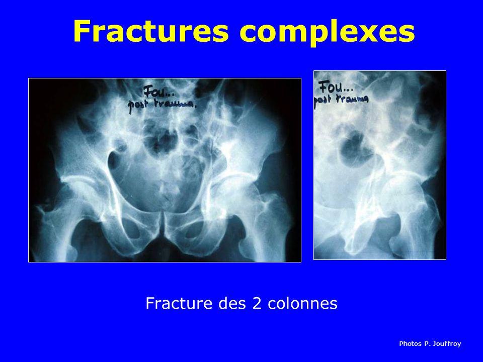 Fractures complexes Fracture des 2 colonnes Photos P. Jouffroy