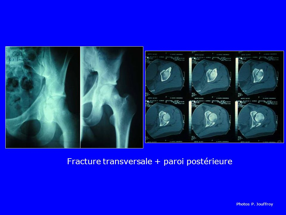 Fracture transversale + paroi postérieure