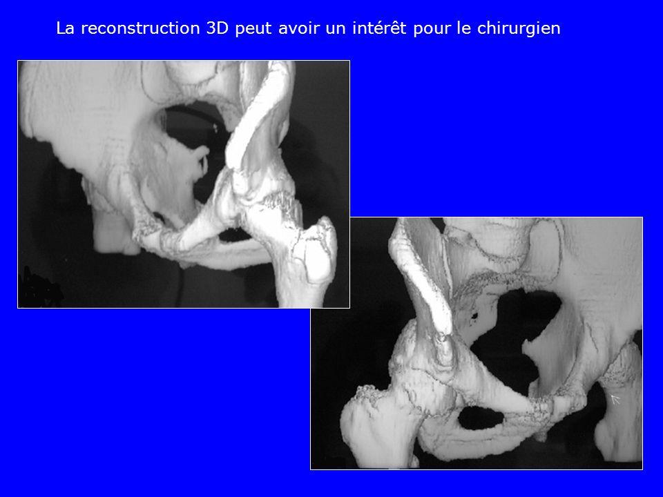 La reconstruction 3D peut avoir un intérêt pour le chirurgien