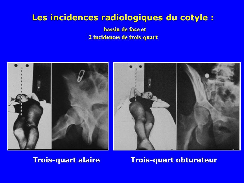 Les incidences radiologiques du cotyle : bassin de face et 2 incidences de trois-quart
