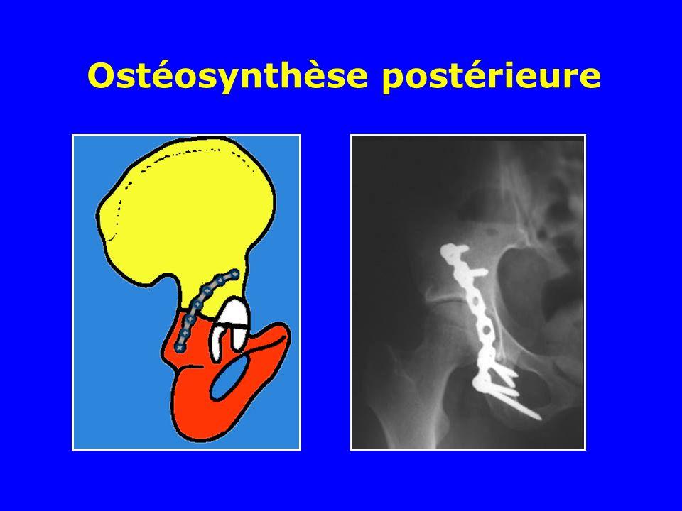 Ostéosynthèse postérieure