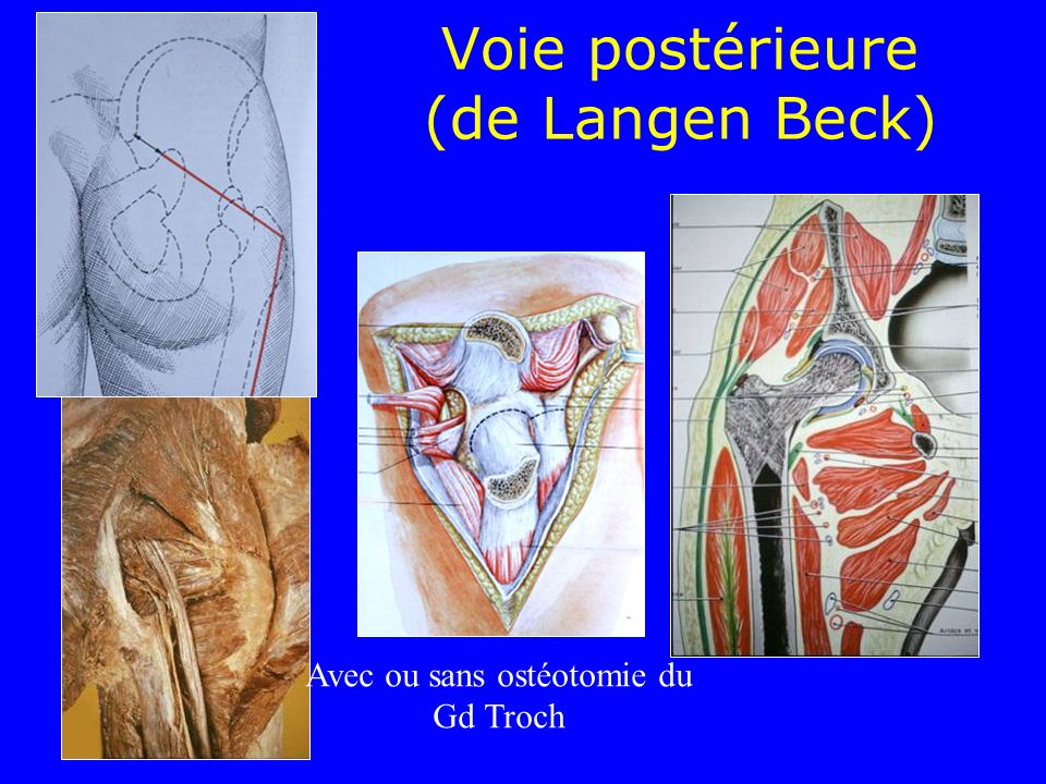 Voie postérieure (de Langen Beck)
