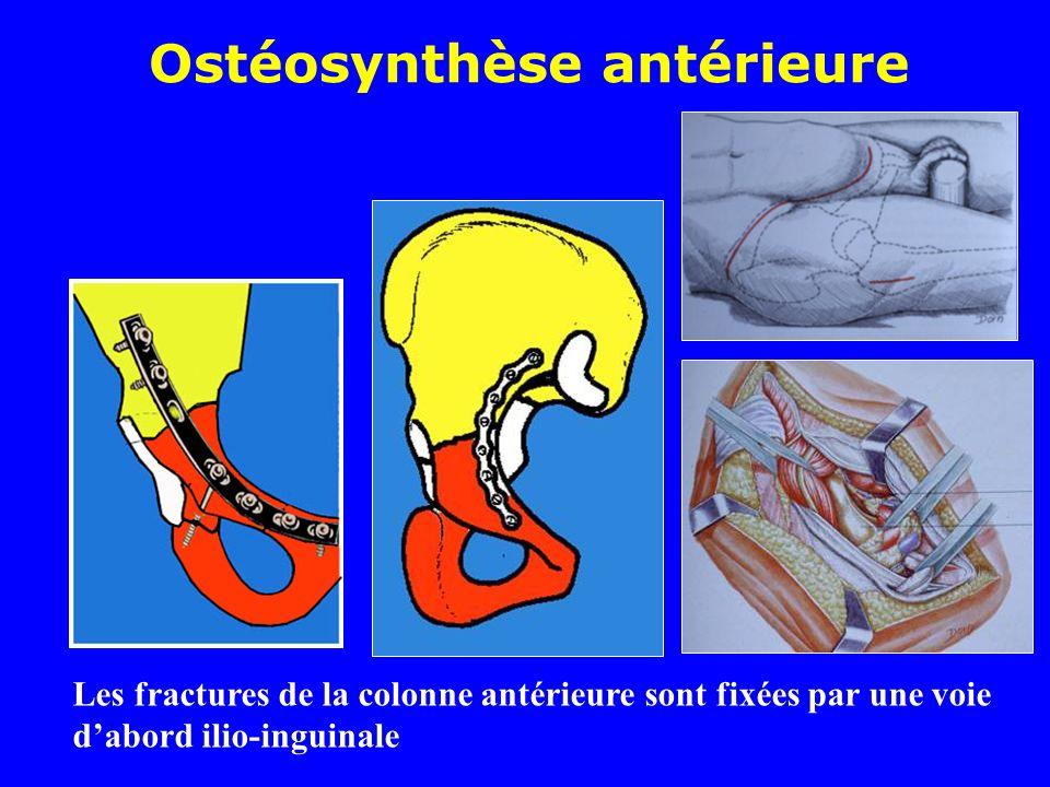 Ostéosynthèse antérieure