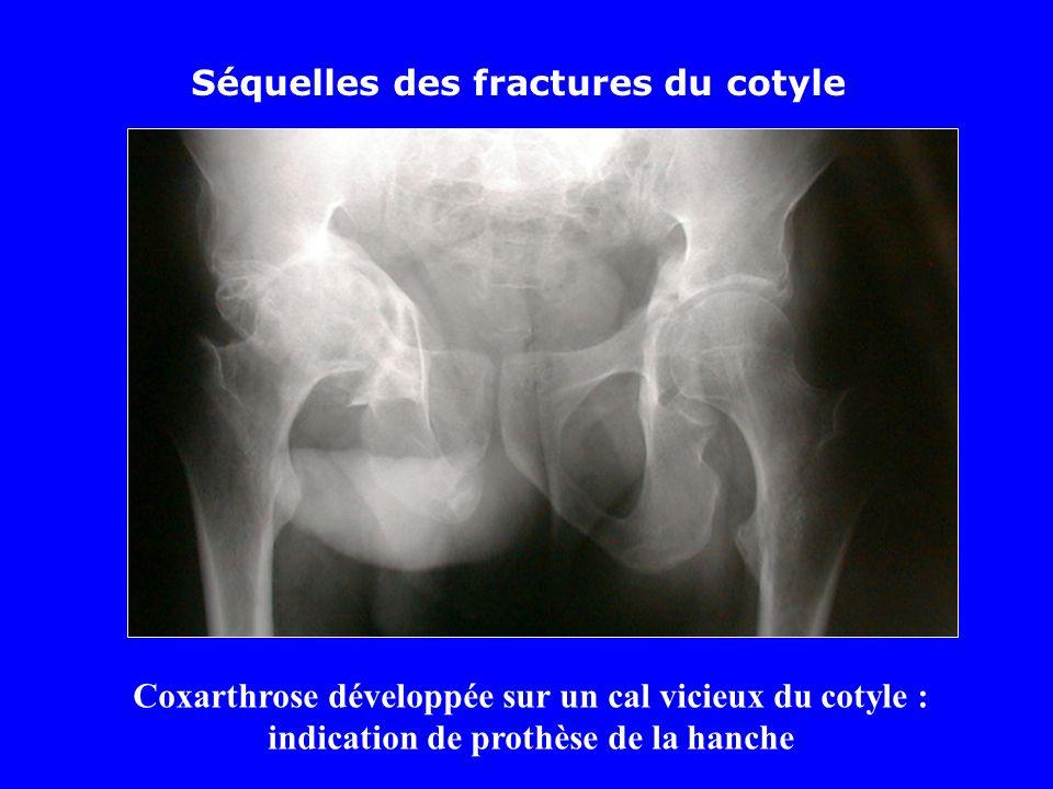 Séquelles des fractures du cotyle