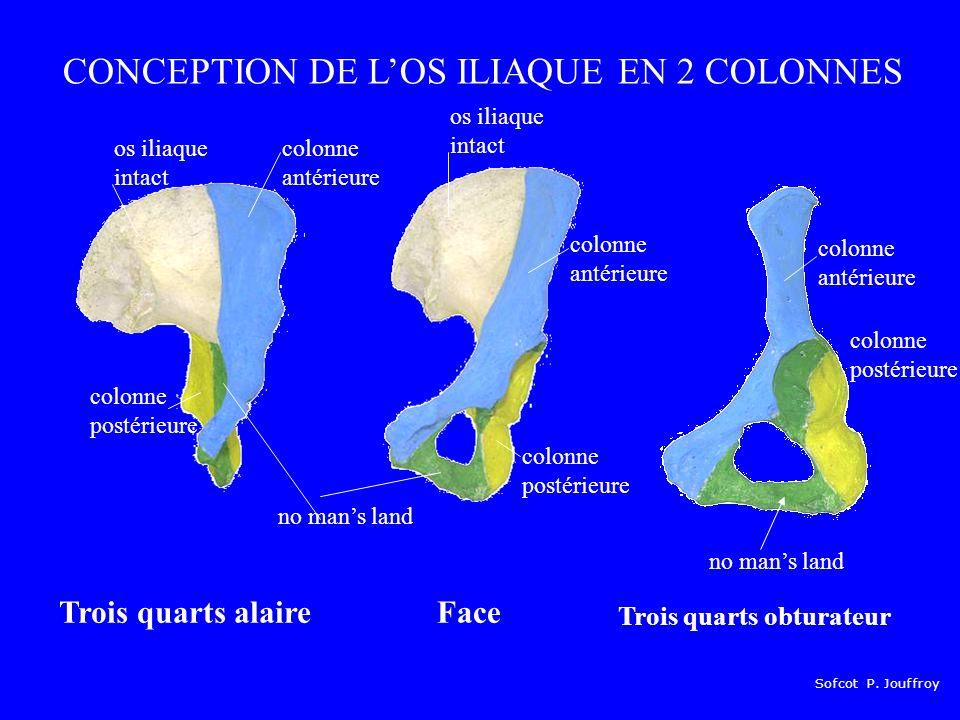 CONCEPTION DE L'OS ILIAQUE EN 2 COLONNES