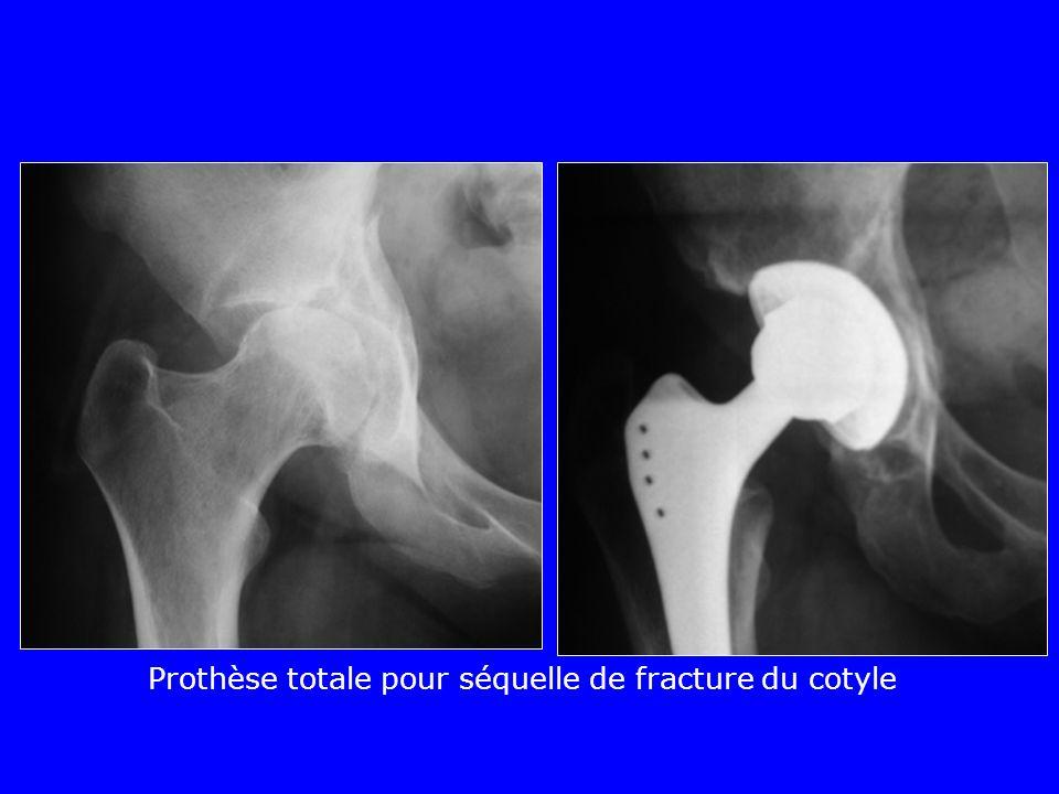Prothèse totale pour séquelle de fracture du cotyle