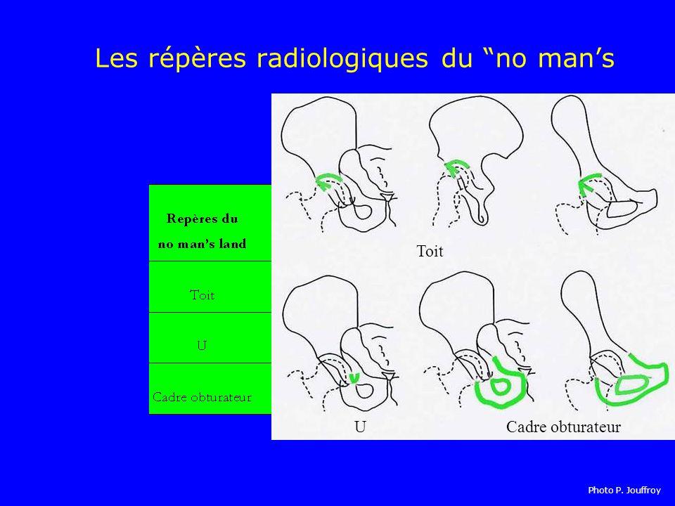 Les répères radiologiques du no man's