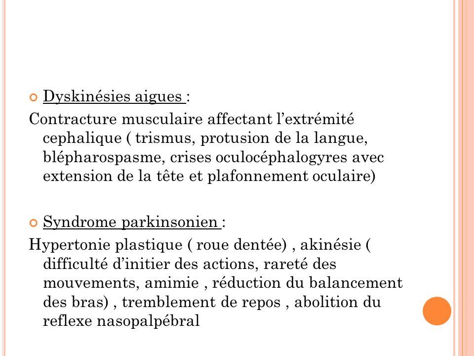 Dyskinésies aigues :