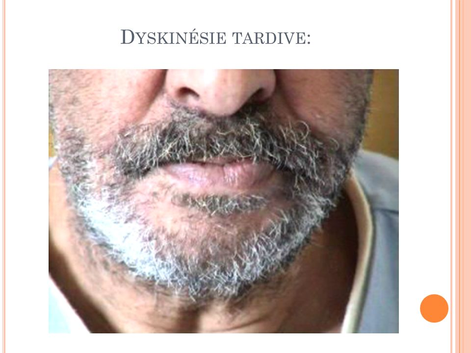 Dyskinésie tardive: