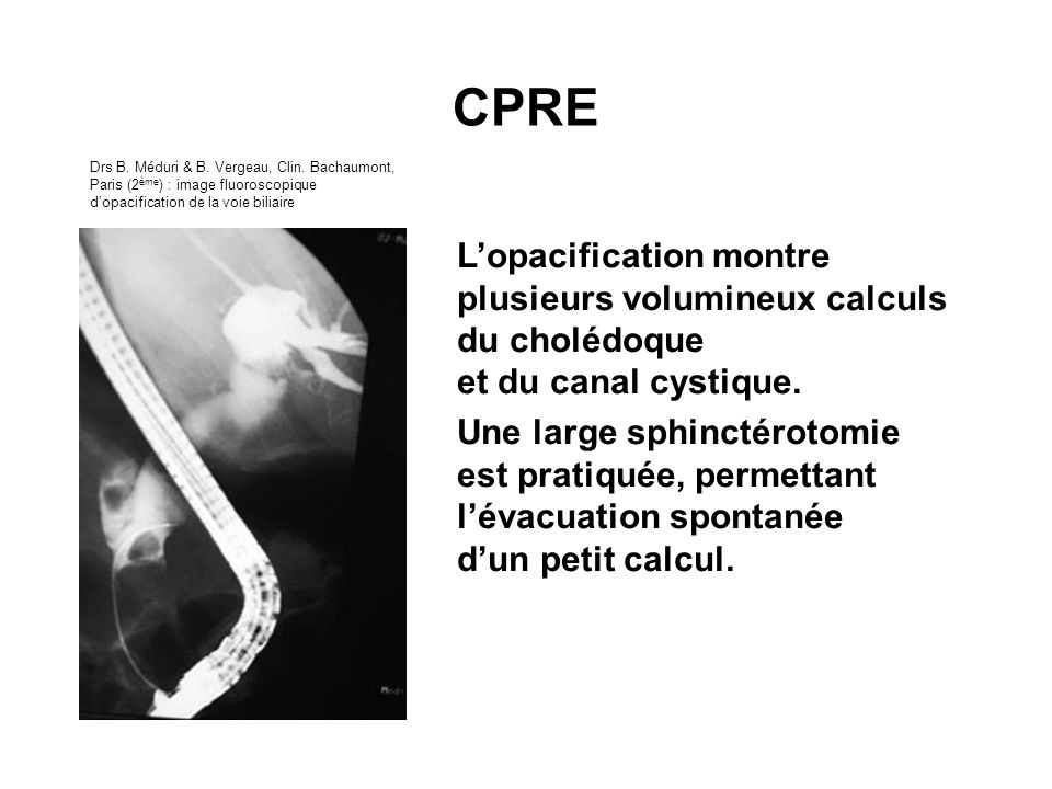 CPRE Drs B. Méduri & B. Vergeau, Clin. Bachaumont, Paris (2ème) : image fluoroscopique d'opacification de la voie biliaire.