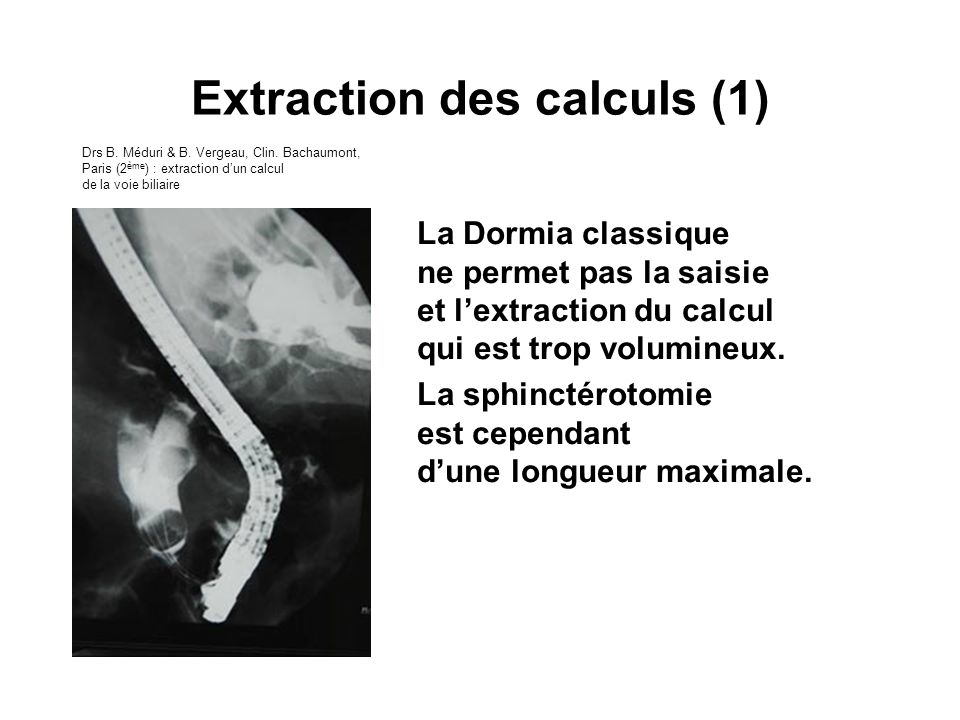 Extraction des calculs (1)